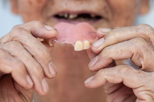 Vakkapurenta Oy | Palvelut - Hampaan lisäys